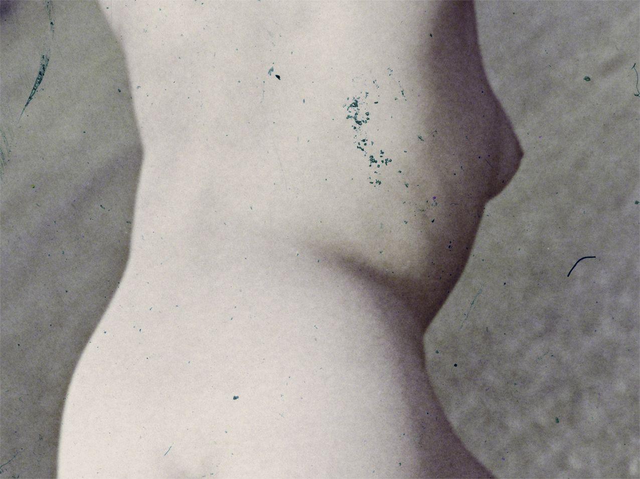 naked IV